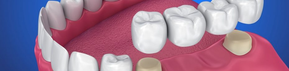 the benefits of getting fitted for dental bridges and dental crowns